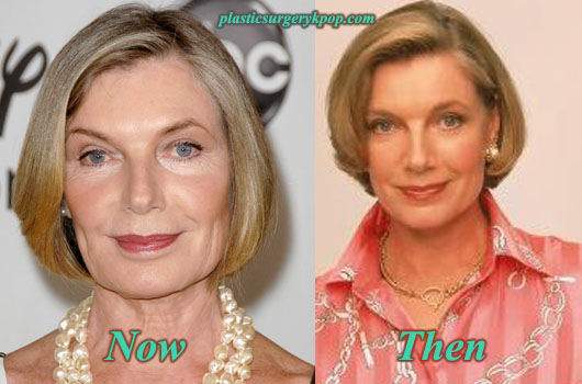 SusanSullivanFaceliftEyelift Susan Sullivan Plastic Surgery Before and After Pictures