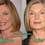 Susan Sullivan Plastic Surgery Before and After Pictures