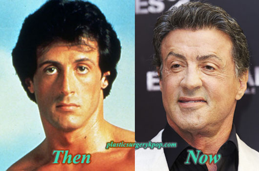SylvesterStalloneFacelift Sylvester Stallone Plastic Surgery Before and After Pictures