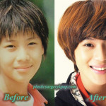 TaeminSHINeePlasticSurgery 150x150 Kyuhyun Plastic Surgery Nose Job and Eyelid Surgery Before After