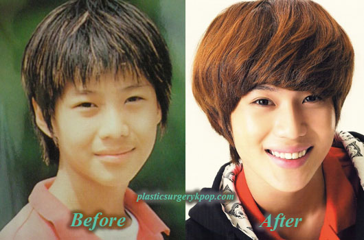 TaeminSHINeePlasticSurgery Taemin SHINee Plastic Surgery Before and After Picture