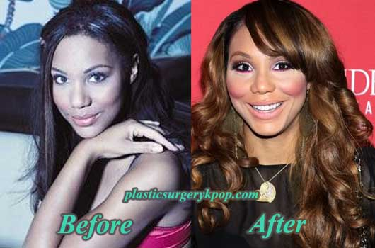 TamarBraxtonPlasticSurgery Tamar Braxton Plastic Surgery Before and After