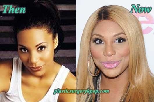 TamarBraxtonPlasticSurgeryPicture Tamar Braxton Plastic Surgery Before and After