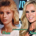 Tamra Barney Plastic Surgery Before & After Pictures