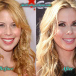 Tara Lipinski Plastic Surgery Before and After Picture