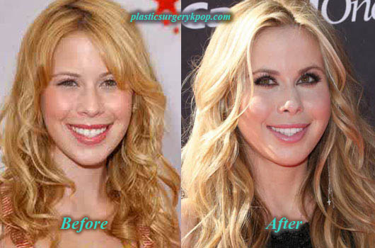 TaraLipinskiPlasticSurgery2 Tara Lipinski Plastic Surgery Before and After Picture