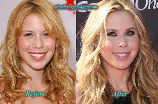TaraLipinskiPlasticSurgery2 Tara Lipinski Plastic Surgery Before and After Picture