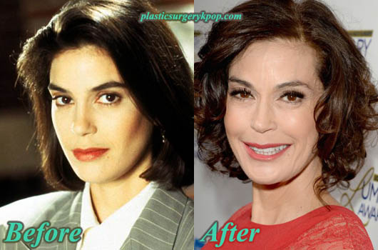 TeriHatcherPlasticSurgery Teri Hatcher Plastic Surgery Before and After Pictures