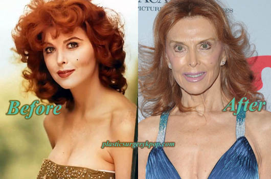 TinaLouiseFaceliftBotox Tina Louise Plastic Surgery Before and After Bad Result Pictures