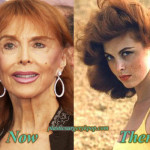 Tina Louise Plastic Surgery Before and After Bad Result Pictures