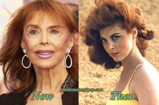 TinaLouisePlasticSurgery Tina Louise Plastic Surgery Before and After Bad Result Pictures