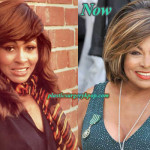 Tina Turner Plastic Surgery Before After Pictures