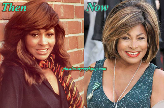TinaTurnerPlasticSurgery Tina Turner Plastic Surgery Before After Pictures