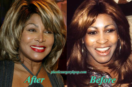 TinaTurnerPlasticSurgeryPicture Tina Turner Plastic Surgery Before After Pictures