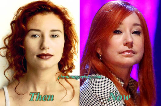 ToriAmosBotox Tori Amos Plastic Surgery Before and After Pictures