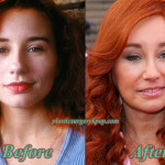 Tori Amos Plastic Surgery Before and After Pictures