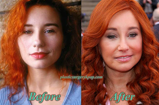 ToriAmosPlasticSurgery Tori Amos Plastic Surgery Before and After Pictures