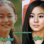 Uee Plastic Surgery Before and After Pictures