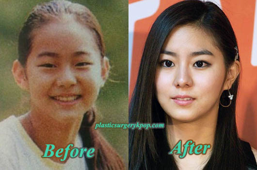 UeePlasticSurgery Uee Plastic Surgery Before and After Pictures