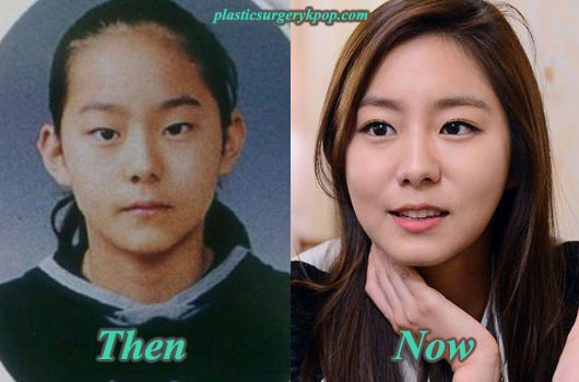UeePlasticSurgeryBeforeandAfter Uee Plastic Surgery Before and After Pictures