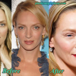 Uma Thurman Plastic Surgery Before and After Pictures
