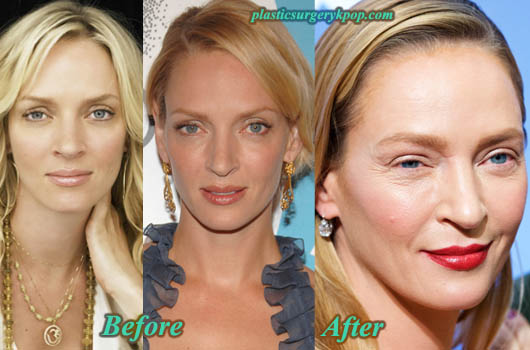 UmaThurmanPlasticSurgery Uma Thurman Plastic Surgery Before and After Pictures