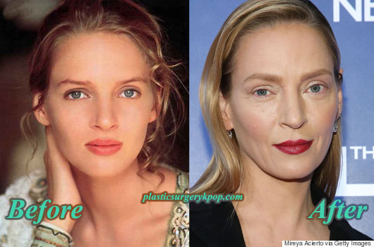 UmaThurmanPlasticSurgeryPicture Uma Thurman Plastic Surgery Before and After Pictures