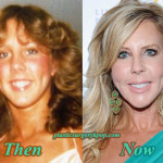 Vicki Gunvalson Plastic Surgery Before and After Pictures