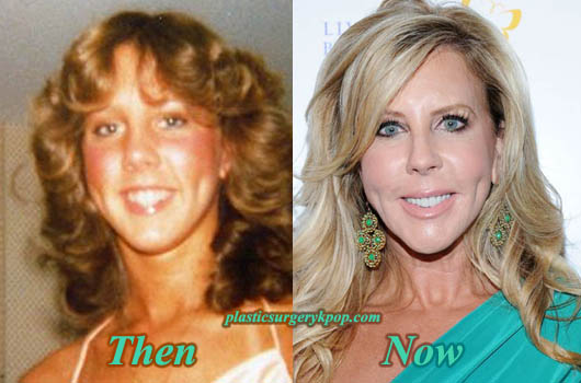 VickiGunvalsonPlasticSurgery Vicki Gunvalson Plastic Surgery Before and After Pictures