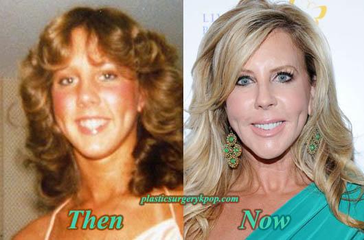 VickiGunvalsonPlasticSurgery Vicki Gunvalson Plastic Surgery Before and After Pictures