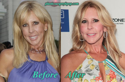 VickiGunvalsonPlasticSurgeryPicture Vicki Gunvalson Plastic Surgery Before and After Pictures