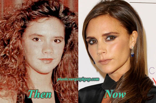 VictoriaBeckhamPictures Victoria Beckham Plastic Surgery Before After Pictures