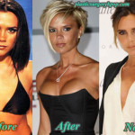 Victoria Beckham Plastic Surgery Before After Pictures