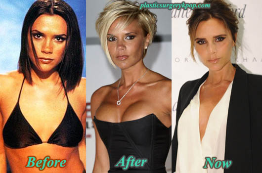 VictoriaBeckhamplasticsurgery Victoria Beckham Plastic Surgery Before After Pictures