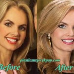 Victoria Osteen Plastic Surgery Before and After