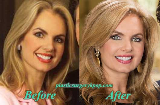 VictoriaOsteenPlasticSurgery Victoria Osteen Plastic Surgery Before and After