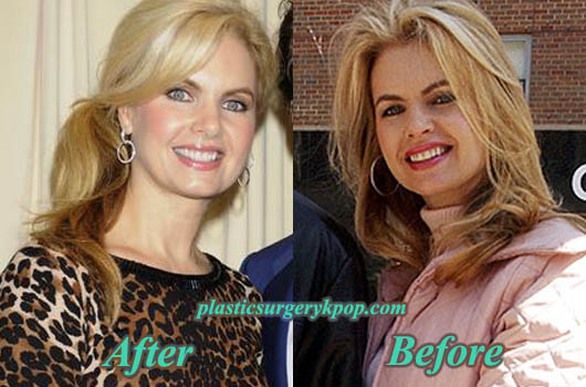 VictoriaOsteenPlasticSurgeryPicture Victoria Osteen Plastic Surgery Before and After