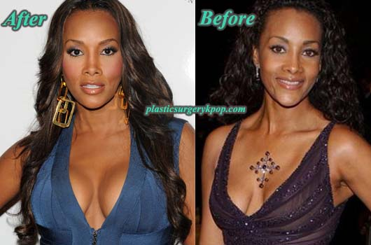 VivicaFoxBreastImplants Vivica Fox Plastic Surgery Pictures Before and After