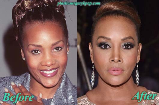 VivicaFoxPlasticSurgery Vivica Fox Plastic Surgery Pictures Before and After