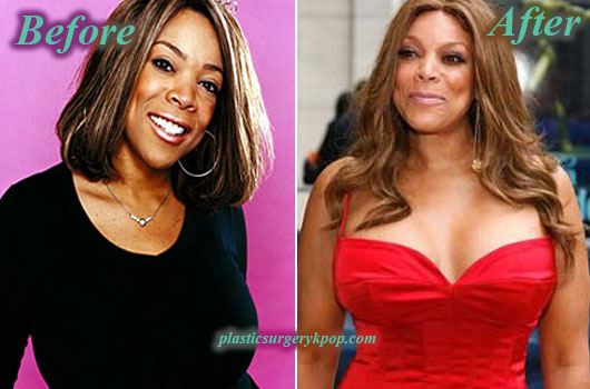 WendyWilliamsPlasticSurgery Wendy Williams Plastic Surgery Before and After Picture