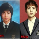 Xiumin EXO Plastic Surgery Before and After Picture