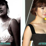 Yoon Eun Hye Plastic Surgery Breast Augmentation, Nose Job