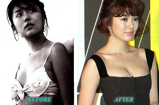 YoonEunHyePlasticSurgery Yoon Eun Hye Plastic Surgery Breast Augmentation, Nose Job