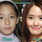 Yoona Plastic Surgery SNSD Plastic Surgery Before After Pictures