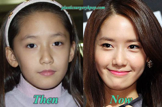 YoonaSNSDPlasticSurgery Yoona Plastic Surgery SNSD Plastic Surgery Before After Pictures
