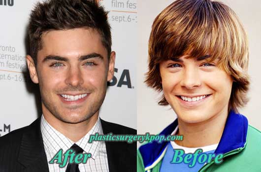 ZacEfronNoseJob Zac Efron Nose Job Before and After Plastic Surgery Photos