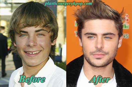 ZacEfronPlasticSurgery Zac Efron Nose Job Before and After Plastic Surgery Photos