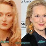 Meryl Streep Plastic Surgery Facelift Before and After