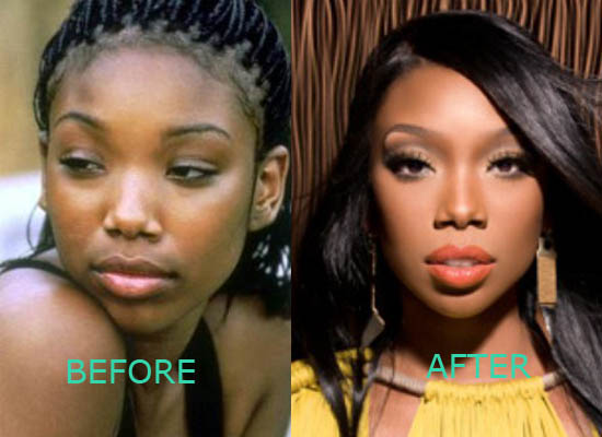Brandy Norwood Plastic Surgery Brandy Norwood Plastic Surgery Before and After Nose Job