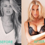 Charlotte McKinney Plastic Surgery Boob Job Before and After
